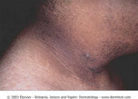 What is this brown discoloration on my neck? | Appalachian