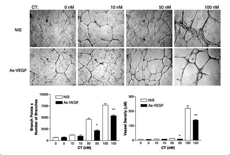 Calcitonin Stimulates Multiple Stages of Angiogenesis by