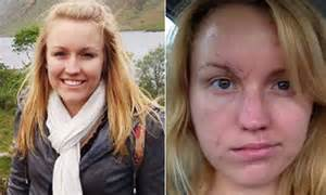 Melissa Dohme's remarkable recovery after being stabbed 32